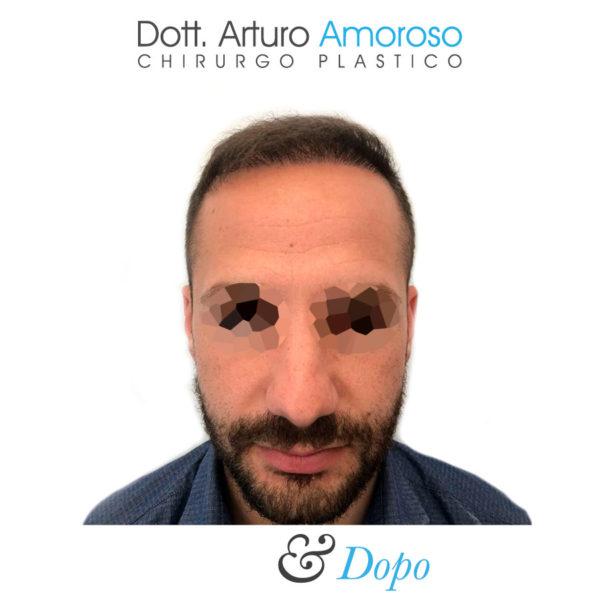 Autotrapianto di capelli con tecnica FUE. Dott. Arturo Amoroso. I prima e dopo